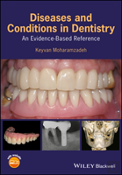 Bertrand.pt - Diseases And Conditions In Dentistry