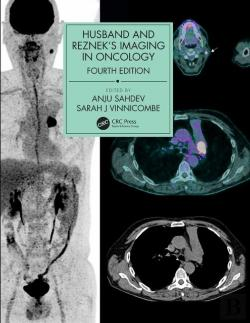 Bertrand.pt - Husband And Reznek'S Imaging In Oncology