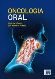 Oncologia Oral