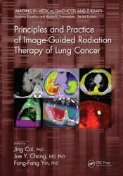 Principles And Practice Of Image-Guided Radiation Therapy Of Lung Cancer