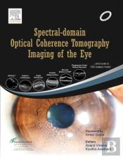 Spectral-Domain Optical Coherence Tomography Imaging Of The Eye