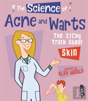 The Science Of Acne & Warts