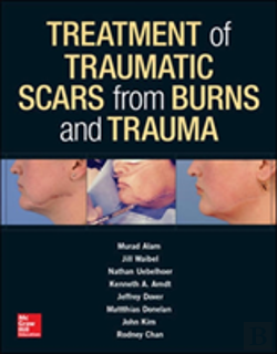 Bertrand.pt - Treatment Of Traumatic Scars From Burns And Trauma